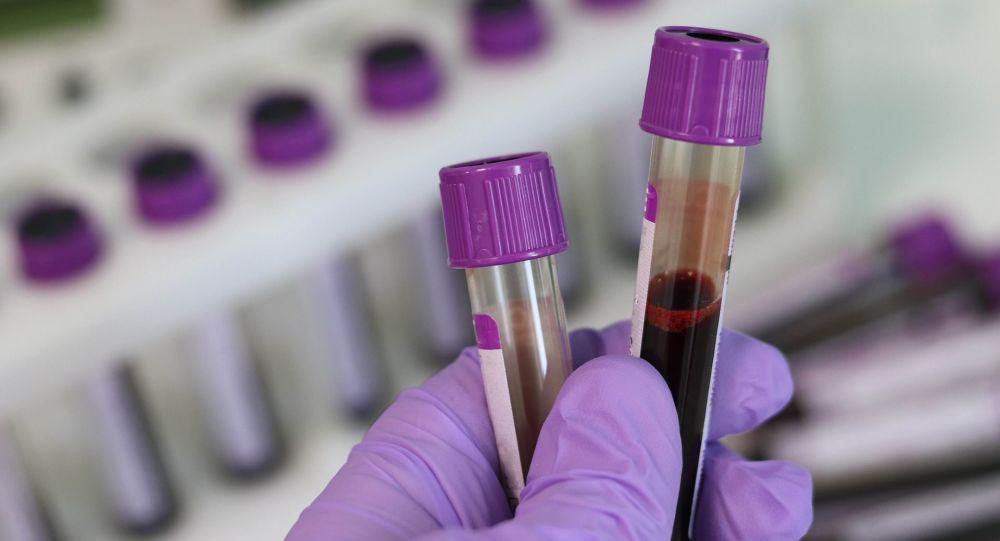 Científicos trabajan en la vacuna contra el Coronavirus de origen chino