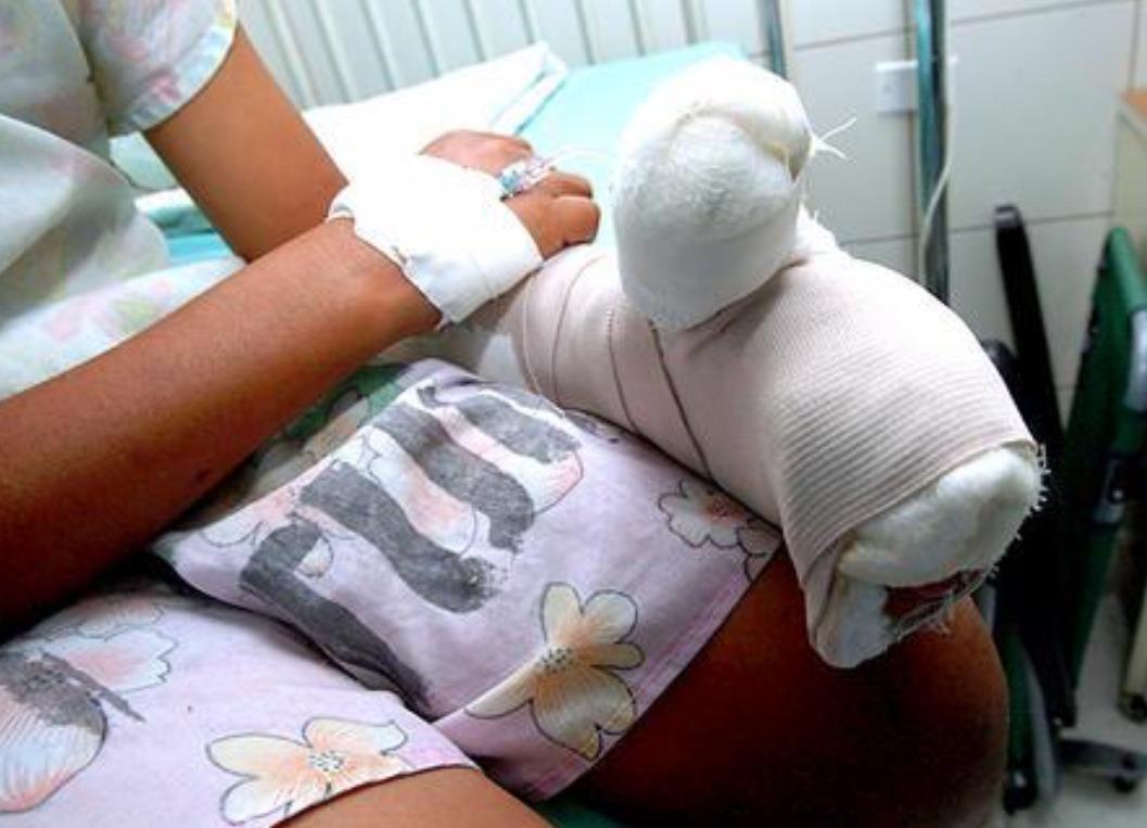 Fundaniquem atiende 2 niños con quemaduras por pólvora y 11 por otras causas