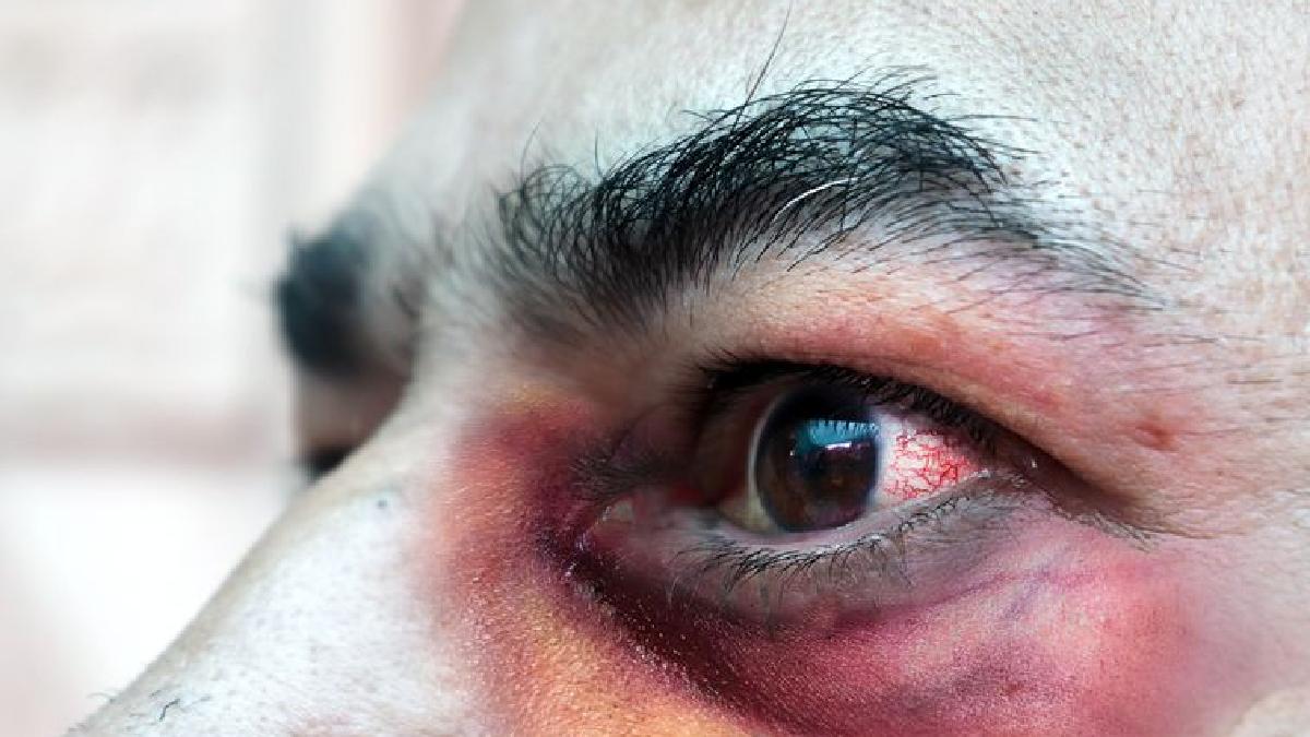 El Hongo Negro afecta a personas con su sistema inmunológico débil, según experto
